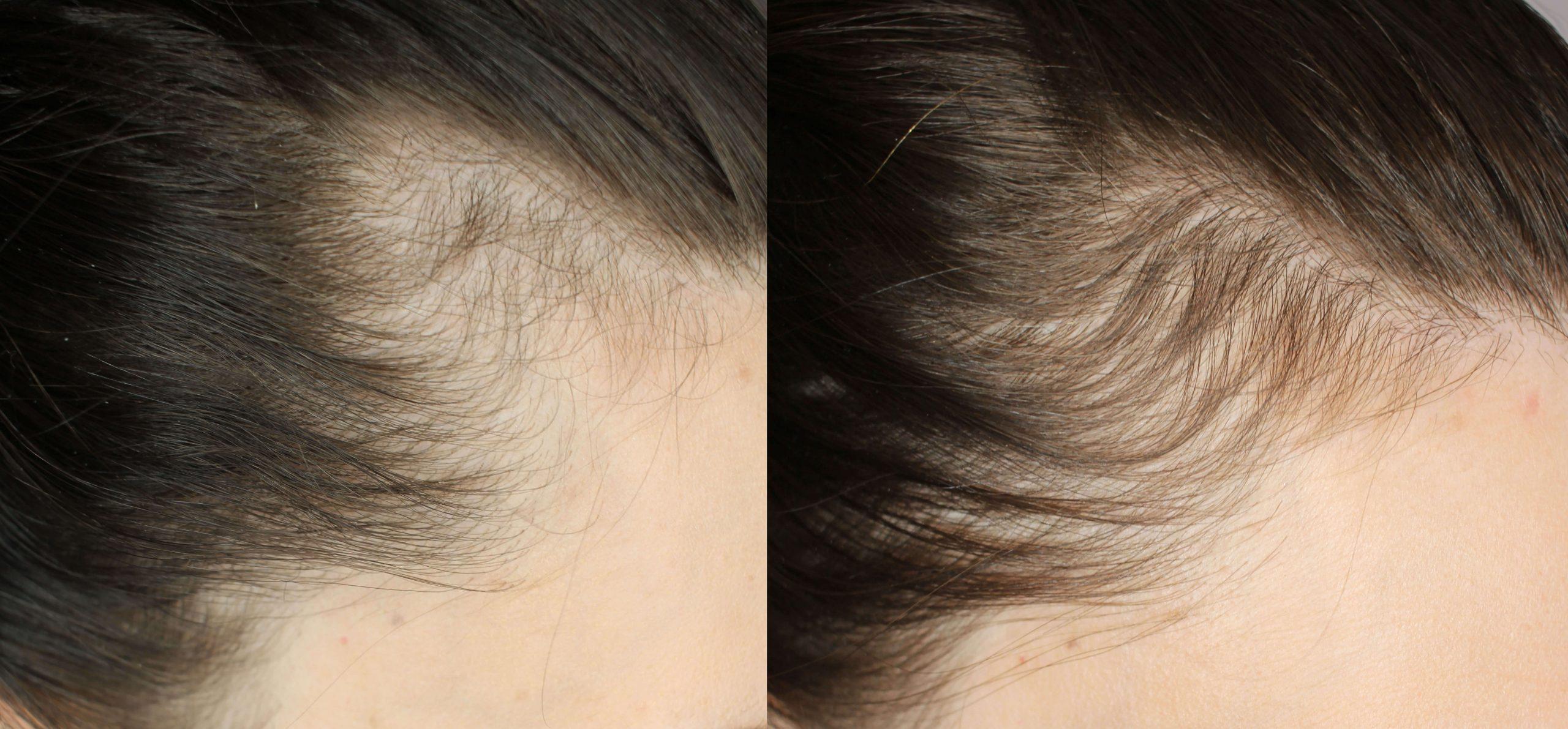 hamilelikte saç dökülmesi