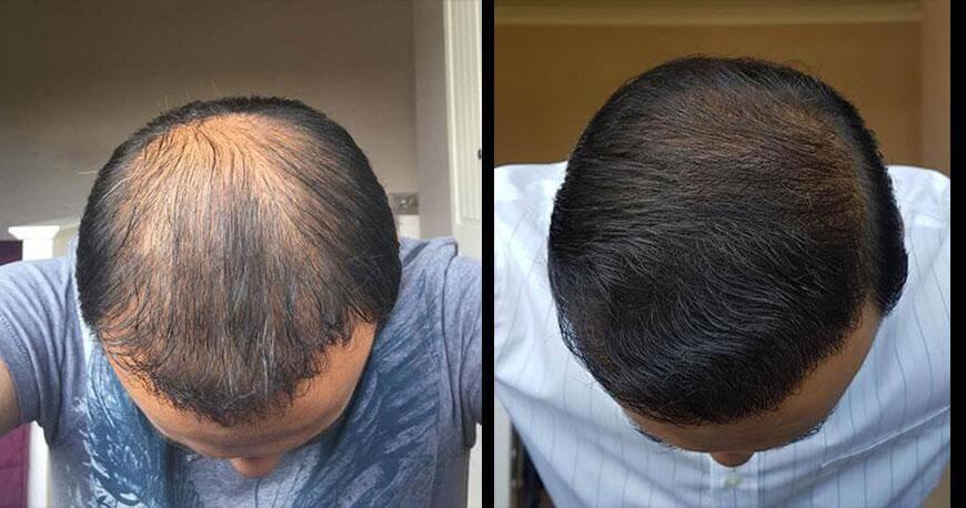 ikinci saç ekimi