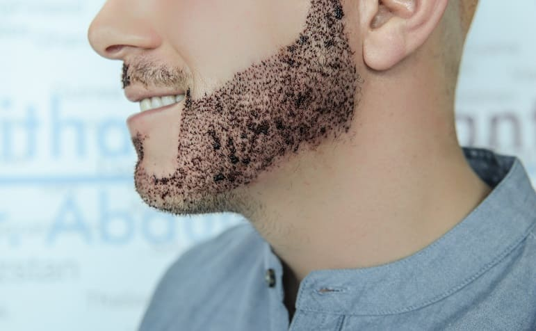 sakal ekimi sonrasi yikama 4