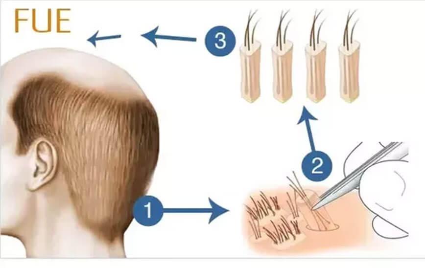 sakaldan saç ekimi